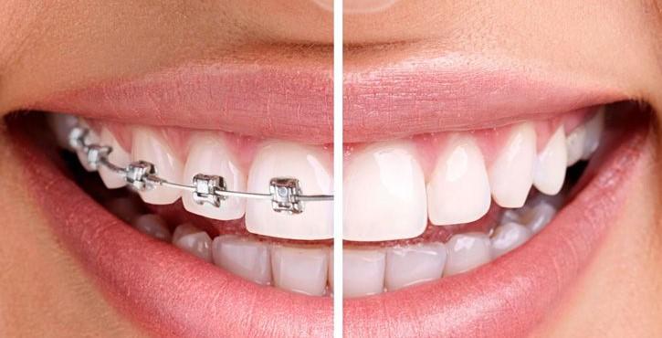 Dia Aberto Ortodontia